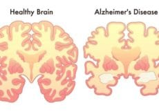 4 Habits You Need To Adopt Today To Stop Dementia or Alzheimers Before It Starts