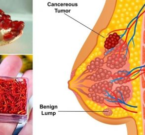 Top 12 Super Foods That Fight Breast Cancer