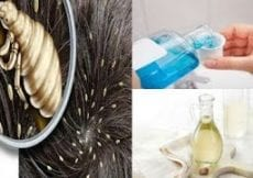 Home Remedies to Eliminate Lice Forever