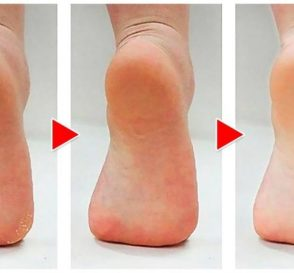 How to Get Rid of Calluses on Feet Naturally
