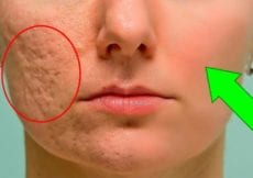 How To Prevent And Get Rid Of Acne Scars For Good