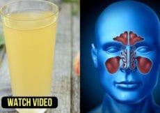 Try Instant Home Remedies for Nasal Congestion Relief Sinusitis Cold Stuffy Nose