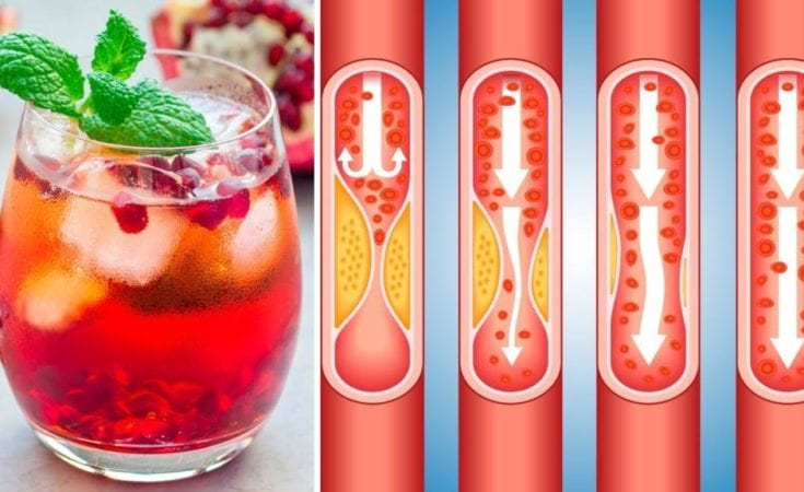 This Delicious Juice Will Help Unclog Arteries and Prevent Heart Disease