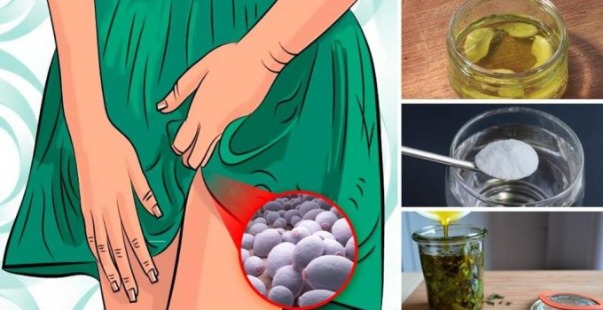 Top 8 Home Remedies for Yeast Infection Candidiasis