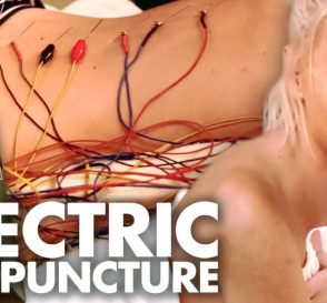 Most Intense Acupuncture Treatment Ever Beauty Trippin