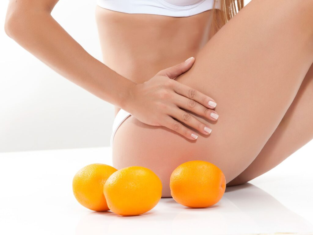 10 Interesting Facts About Cellulite And How To Treat It At Home Ytago